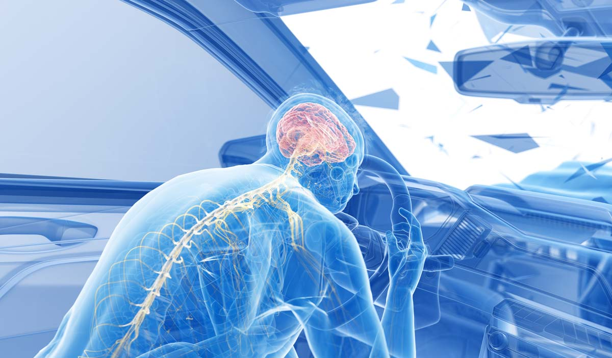 car accident traumatic brain injury lawyer san francisco